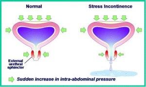 stress incontinence Australia-1