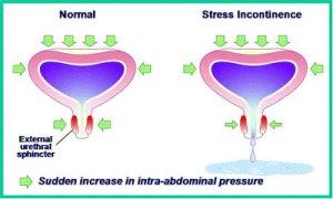 Stress Incontinence Australia